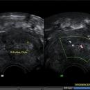 Endometriumhyperplasie - Schleimhautverdickung